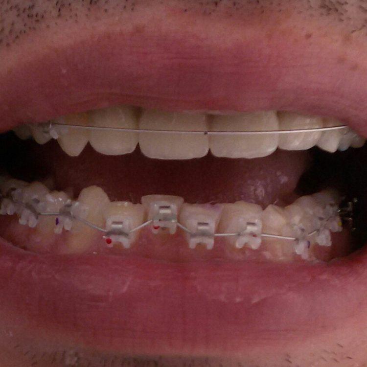 Ortodontska proteza
