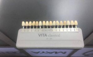 Izbeljivanje zuba - ključ boja